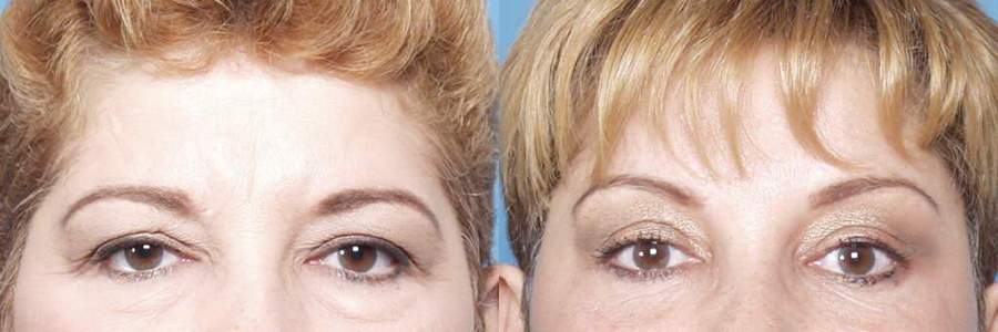 Cosmetic Procedures and the Brow Lift