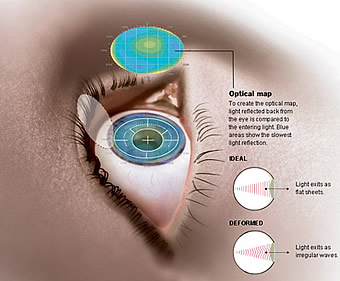 Lasik Laser Vision Correction